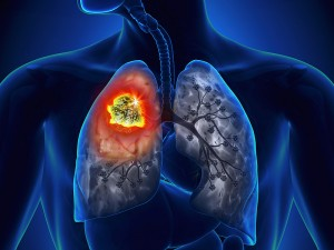 dt_150527_lung_cancer_800x600 (1)